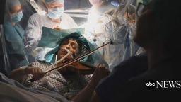 Цигуларка свири, докато ѝ правят мозъчна операция (видео)