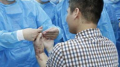 За пръв път в света: присадиха ръка от жив донор