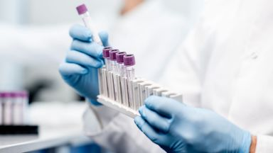 Руска ваксина срещу Covid-19 под формата на кисело мляко