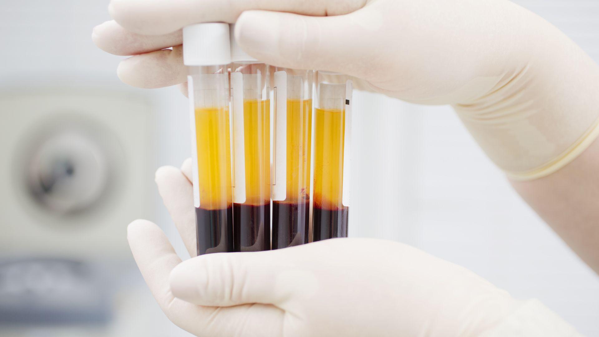 Учени откриха връзка между лечението с плазма и мутации на коронавируса