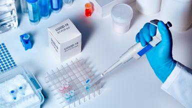 НАП влиза в лабораториите, които правят тестове за COVID-19