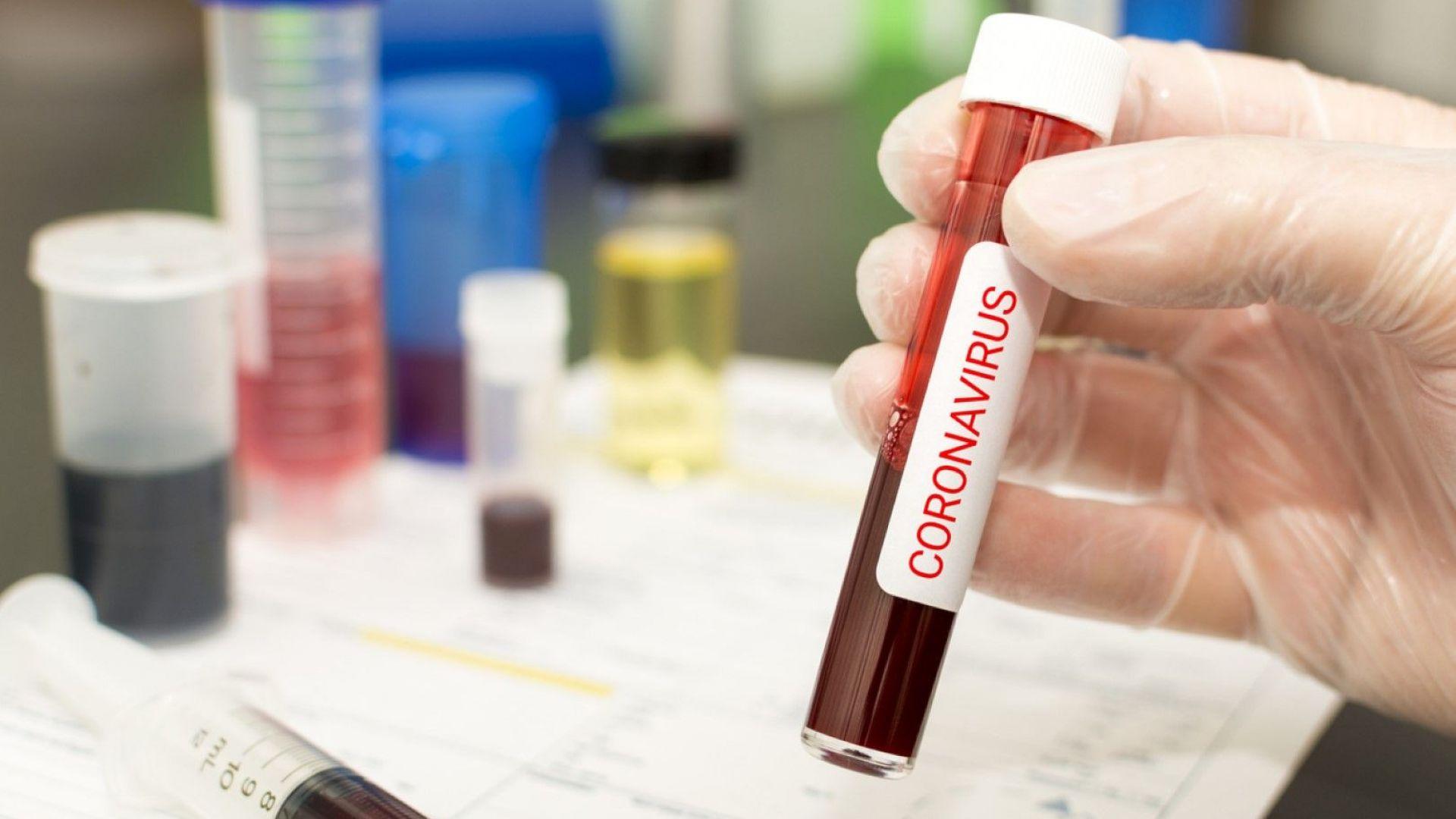 Рекорден брой новозаразени с коронавируса у нас за 24 часа