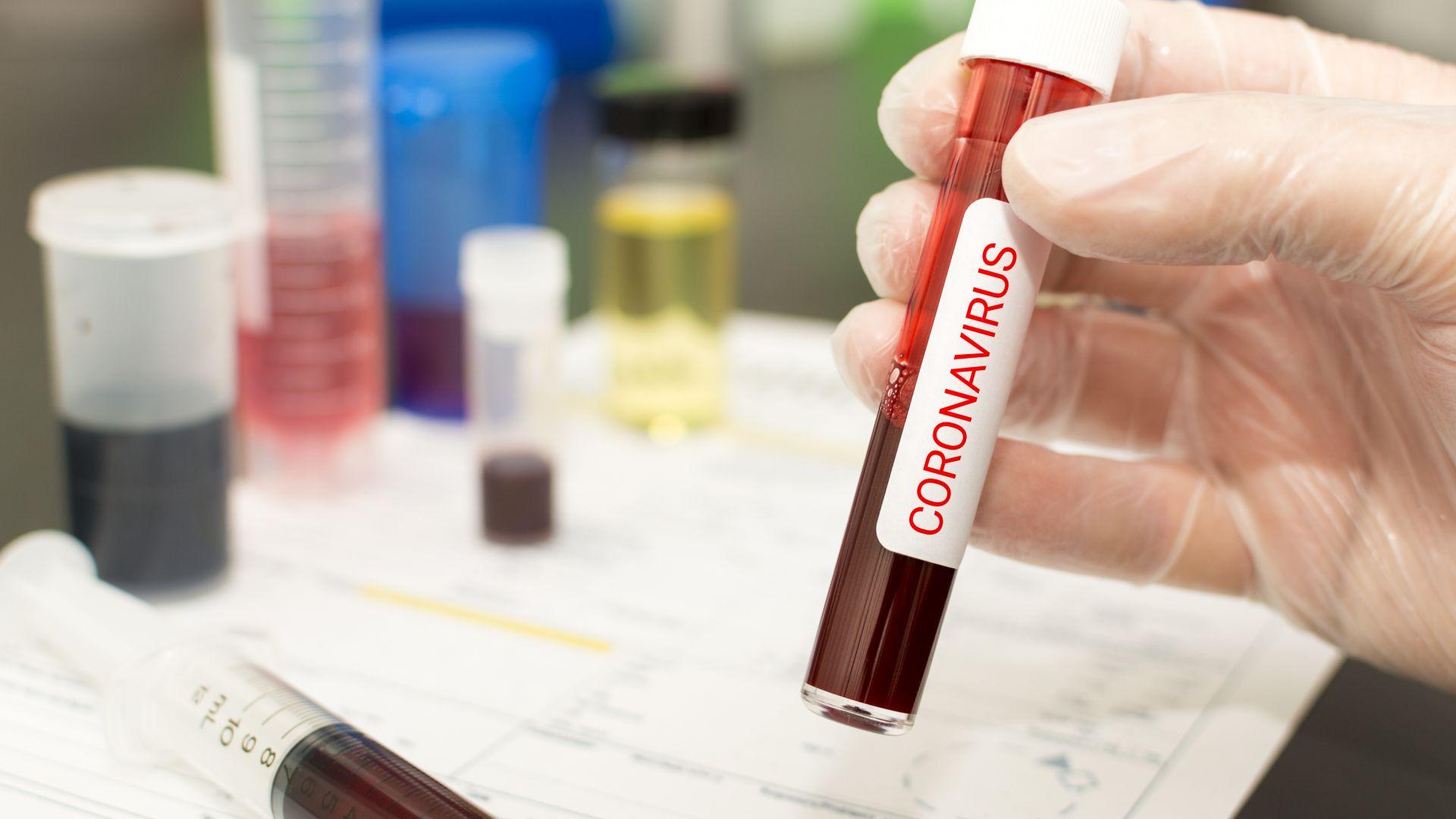 Най-малко 12 българи с коронавирус в английска ферма
