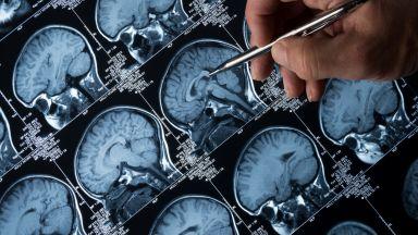 Експериментален кръвен тест за Алцхаймер дава обещаващи резултати