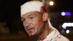Кървави сблъсъци в Беларус