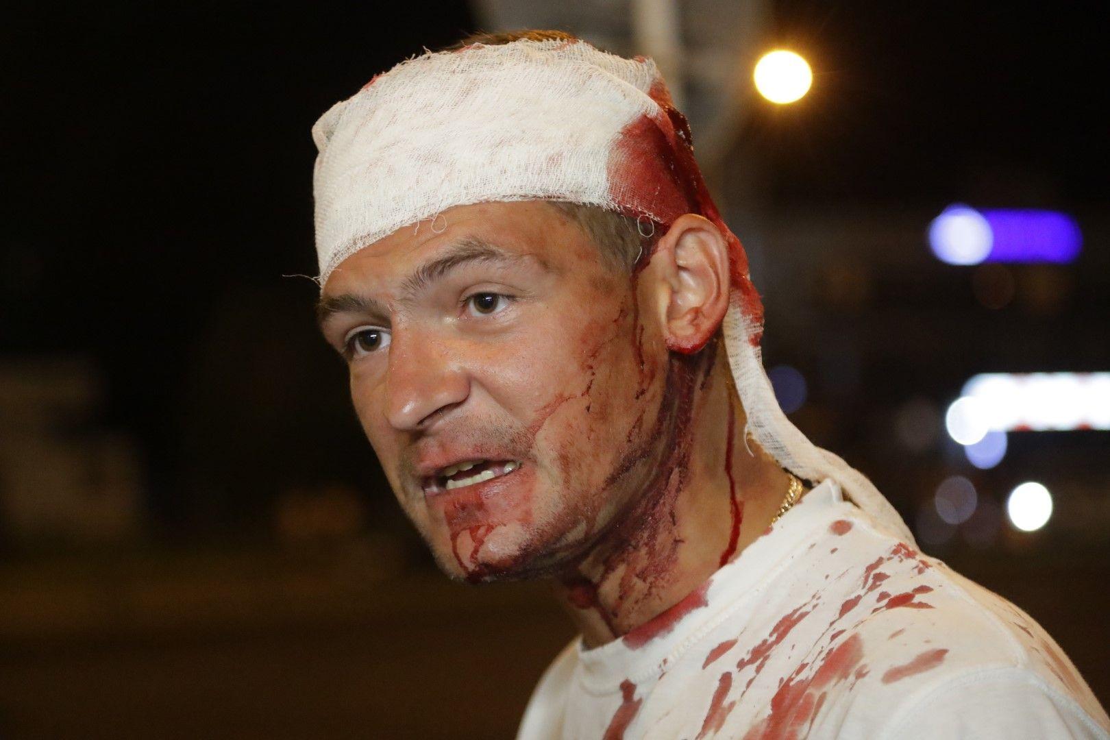 Окървавен мъж разговаря с протестиращите след сблъсъци с милицията в Минско
