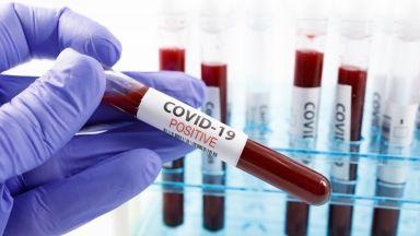 49 заразени с коронавирус в шивашки цех в Айтос