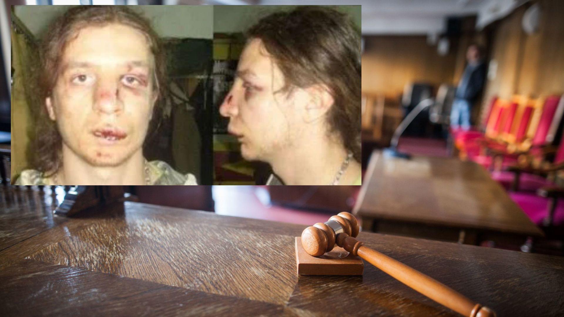 След 9 години - пребит от полицаи осъди прокуратурата за незаконно обвинение