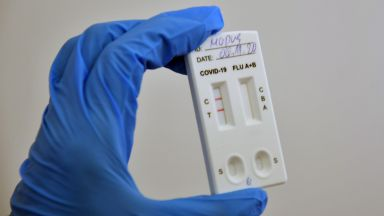 Процентът положителни проби за коронавирус падна до 5