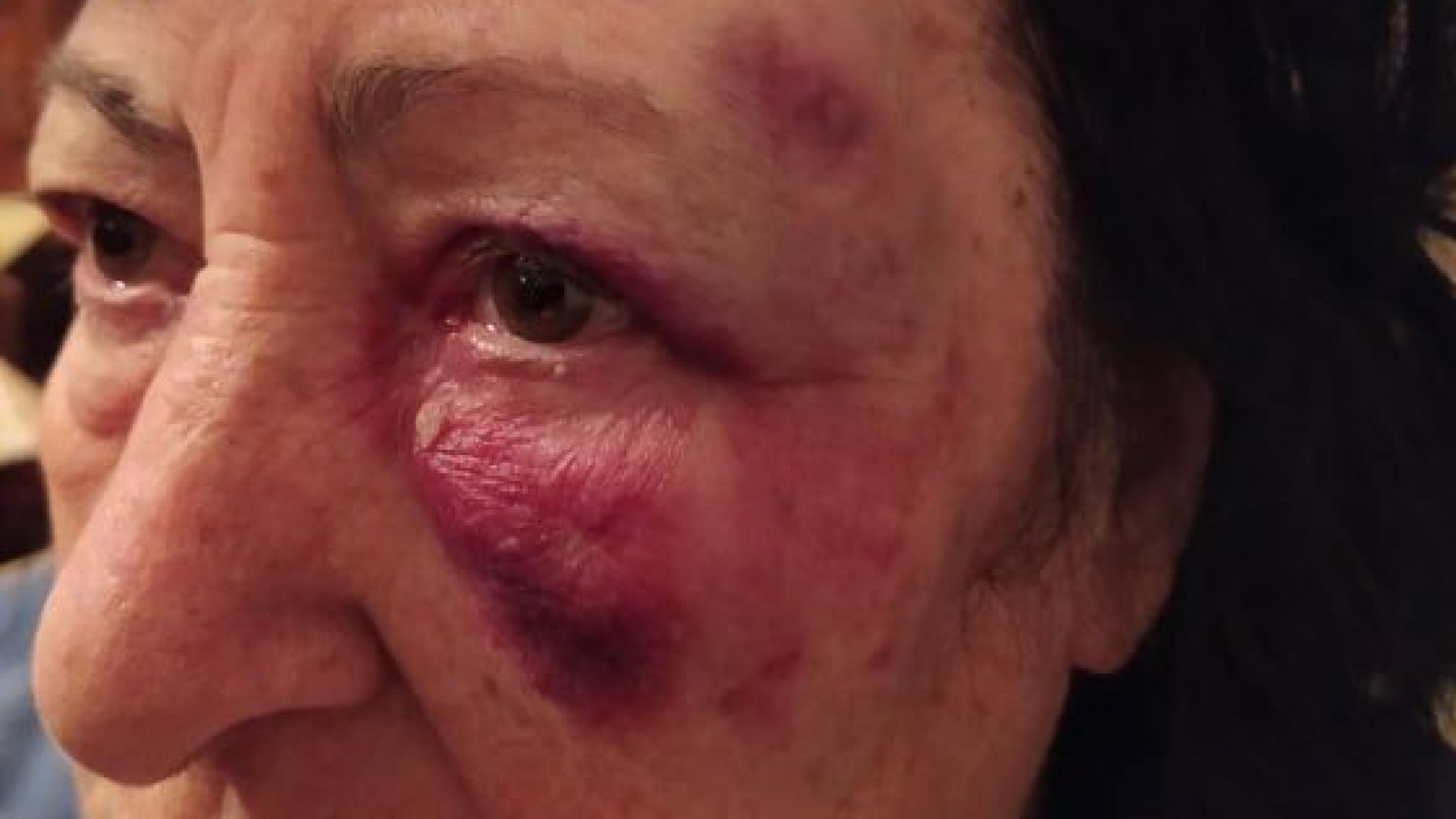 Жена пострада тежко заради разбит тротоар в Шумен (снимки)