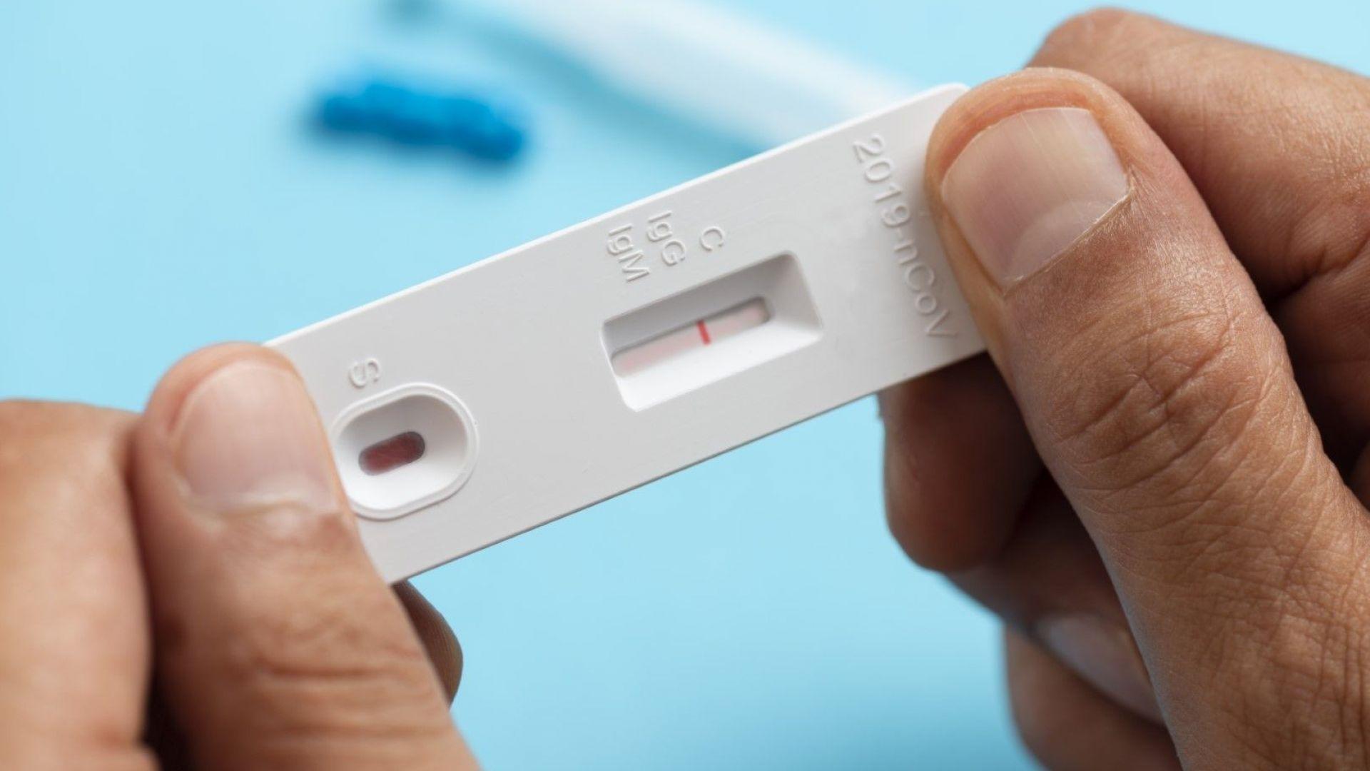 Положителните тестове за COVID-19 паднаха до 12.6%