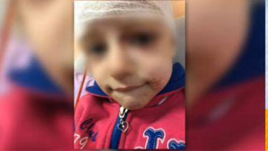 Питбул нахапа 4-годишно момиченце в София, с две фрактури на черепа е