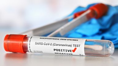 Регистрираме 93 нови случая на COVID-19, пак сме под 1%