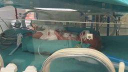 След 5 години чакане: Жена роди петзнаци в Измит (снимки/видео)