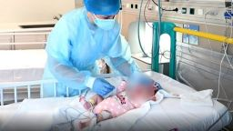 Спасиха бебе с трансплантация на сърце (видео)